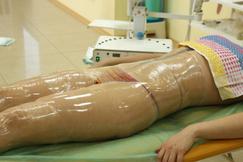 Антицеллюлитные обертывания