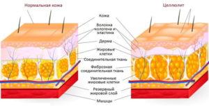 Общие характеристики, симптомы, лечение, а также отличие водного от жирового целлюлита.