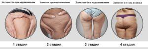 Классификация целлюлита